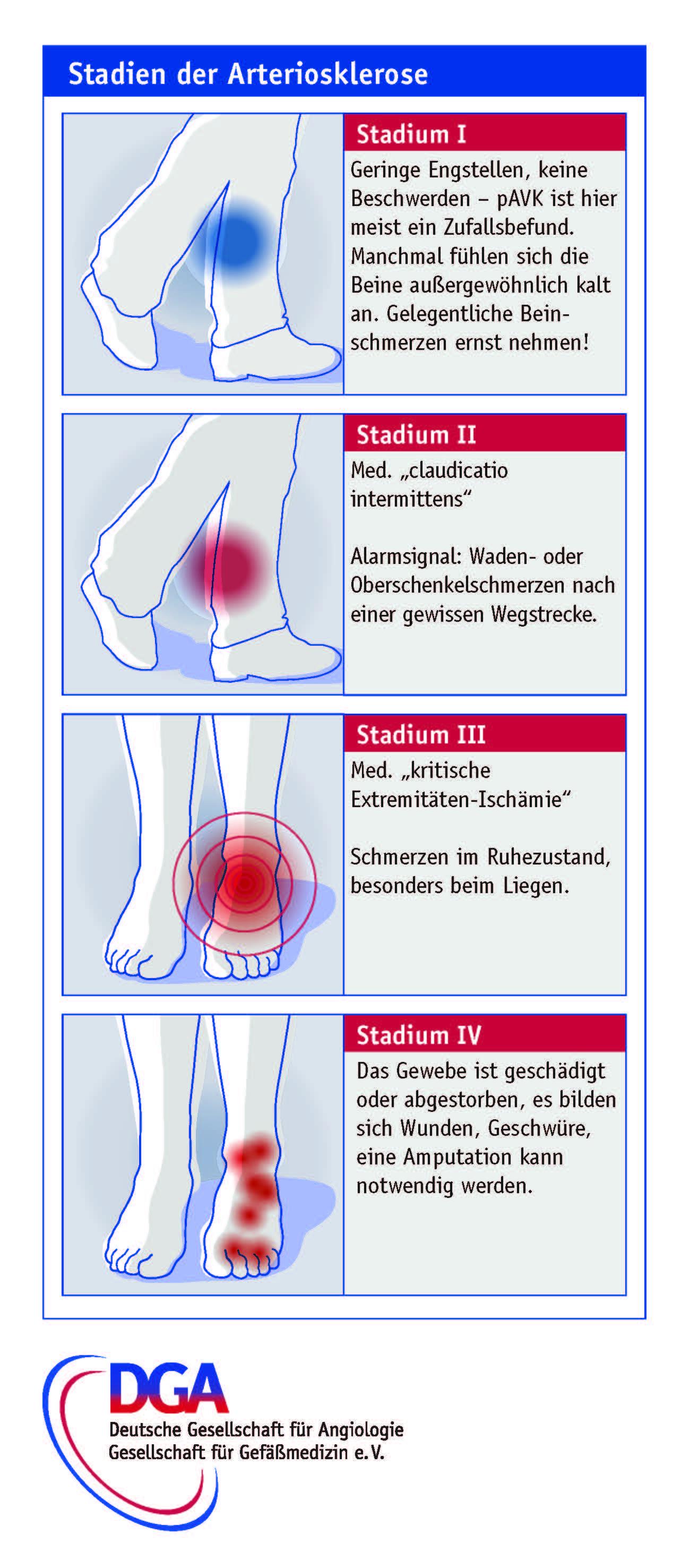 Stadien der Arteriosklerose