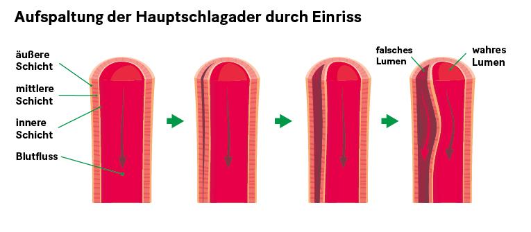 Grafik: Aufspaltung der Hauptschlagader durch Einriss