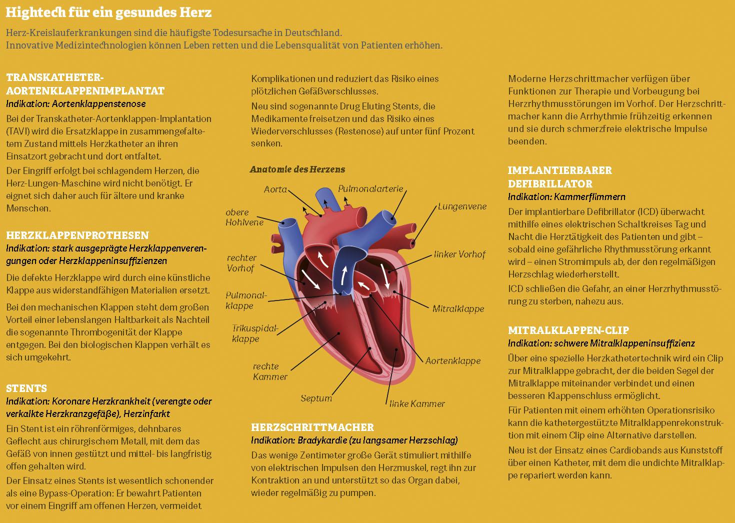 Grafik: Hightech für ein gesundes Herz - innovative Medizintechnologien können Leben retten.