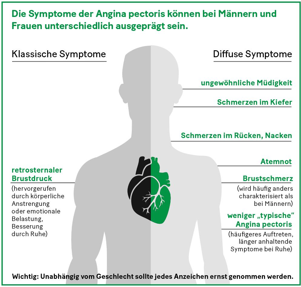 Grafik: Die Symptome der Angina pectoris können bei Männern und Frauen unterschiedlich ausgeprägt sein.