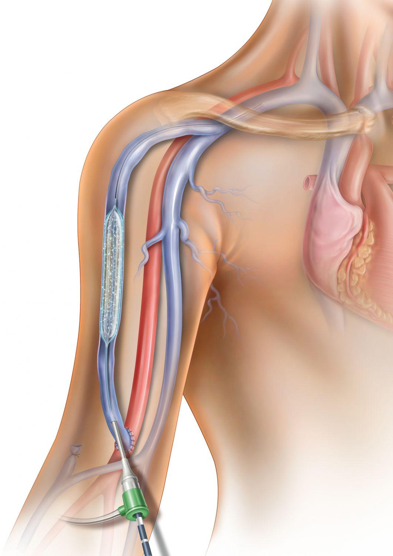 Bild einer Schulter, in die ein Ballonkatheter eingeführt wird. Thema: Dialyse