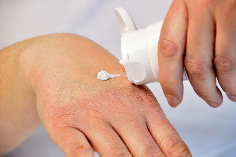 Neurodermitiker cremt sich die Hände ein.