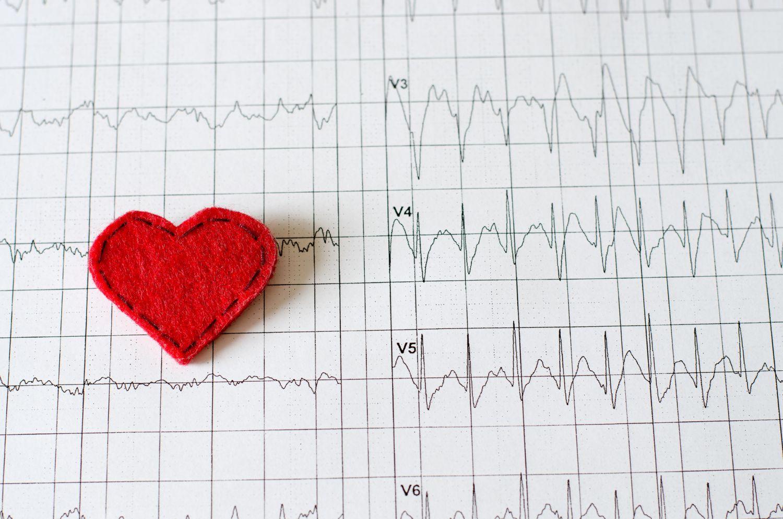 EKG-Diagramm mit Stoffherz