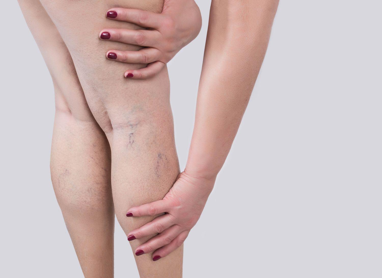 Eine Frau hält ihr Bein, auf dem Krampfadern zu sehen sind.