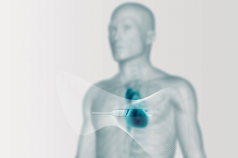 Grafik zum Thema Herzmonitor