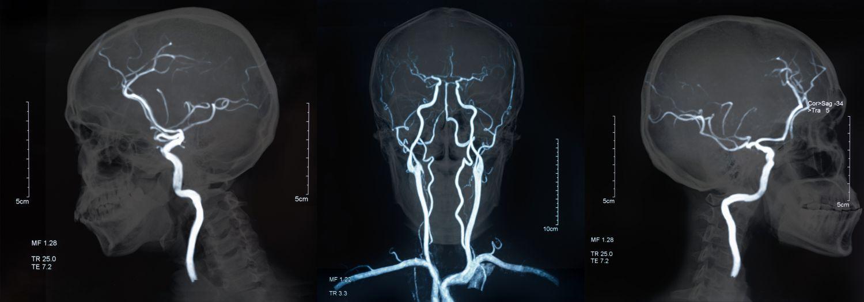 Untersuchungsbilder eines Patienten mit Blutgerinnsel im Hirn. Thema: Thrombektomie