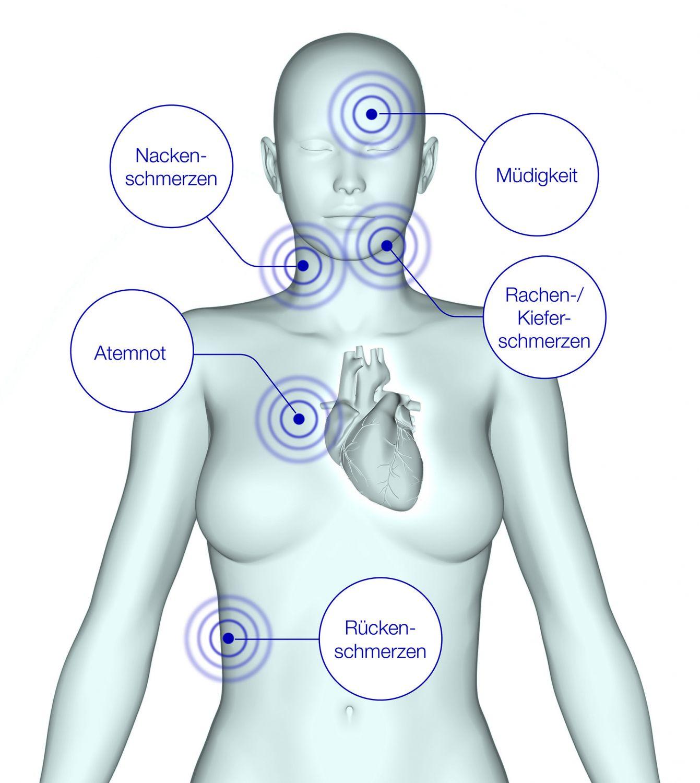 Grafik: Angina-pectoris-SymptomebeiFrauen