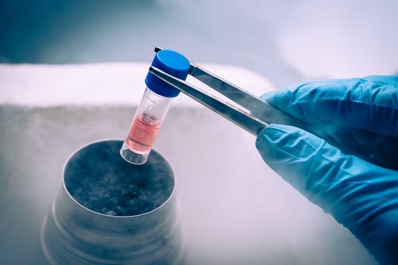 Ein Mediziner nimmt ein Röhrchen mit Stammzellen aus einem Behälter