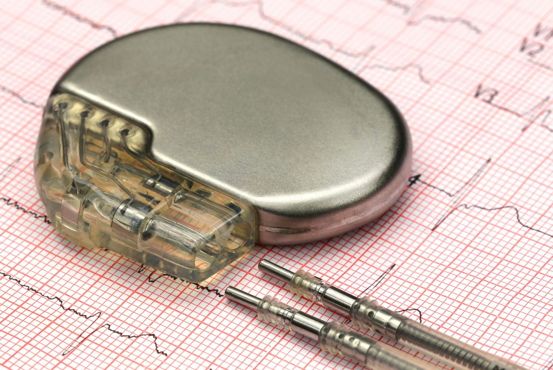 Herzschrittmacher, Einsatz bei Herzrhythmusstörungen