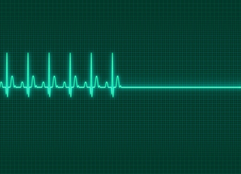 Ein EKG zeigt an, wie der Herzschlag aussetzt. Thema: Vorsorge für den Todesfall