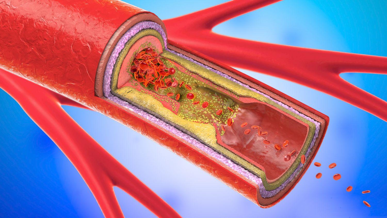 Grafik eines Gefäßes. Thema periphere arterielle Verschlusskrankheit