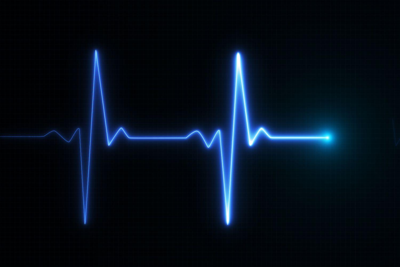 Ein EKG. Thema: Vorhofflimmern und Herz-Apps